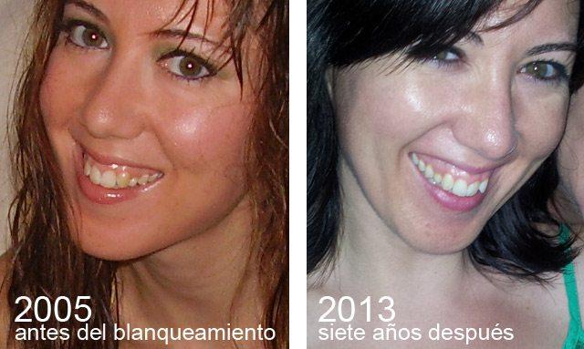 dientes-antes-y-despues-del-blanqueamiento