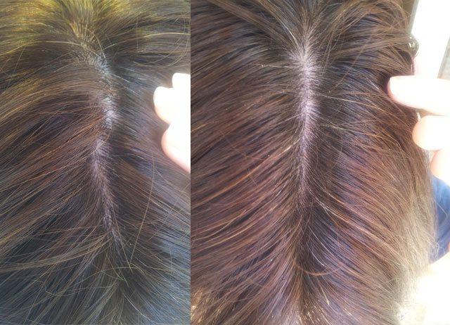 Los cabellos secos que hacer los aceites