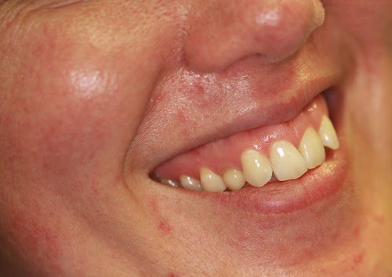 piel-antes-tratamiento